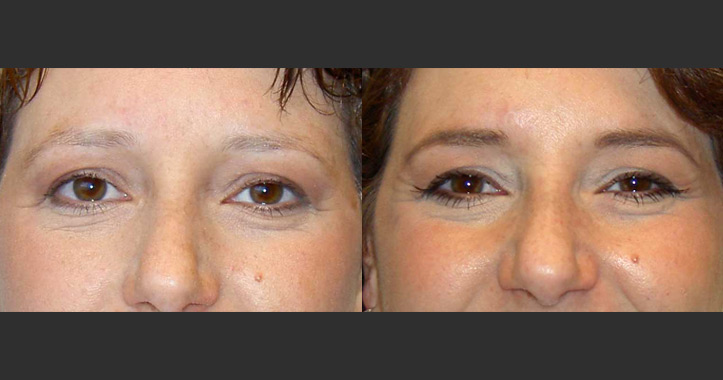 Eyebrows Crawford Plastic Surgery