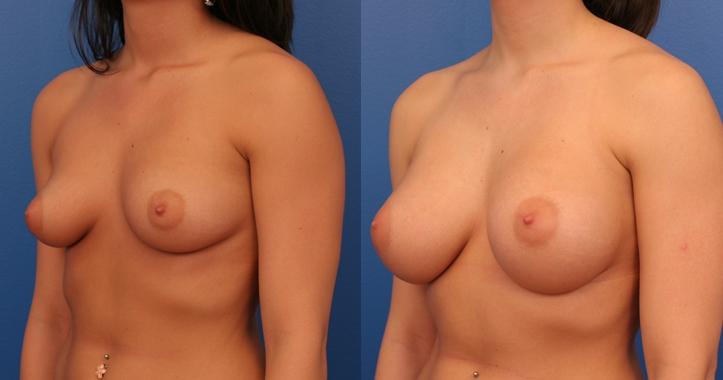 Marietta Breast Implants