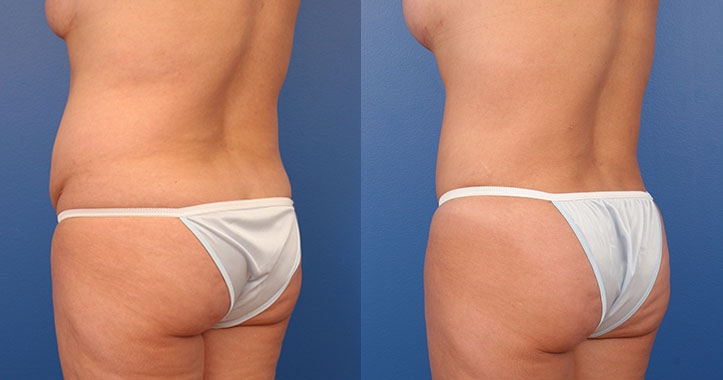 Tummy Tuck Left Post Quarter