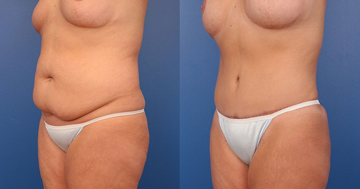 Tummy Tuck Left Quarter