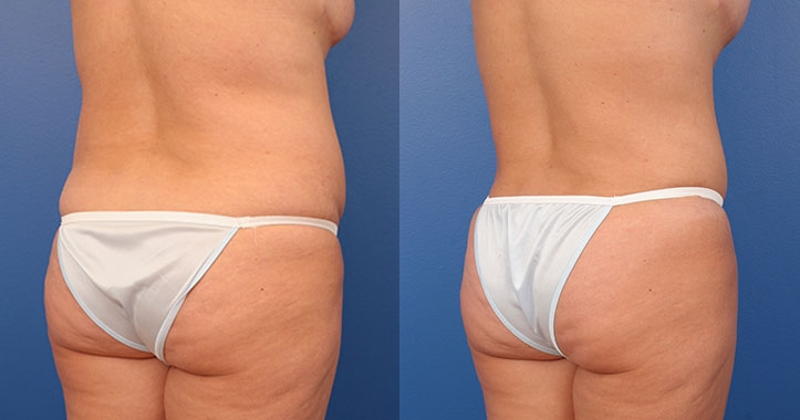 Tummy Tuck Right Post Quarter