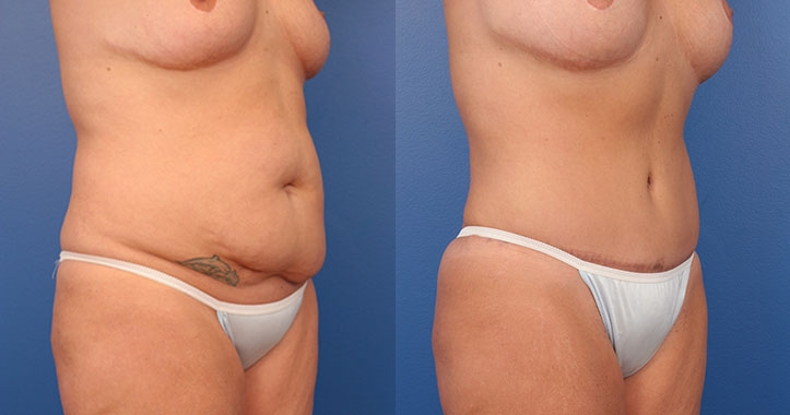 Tummy Tuck Right Quarter