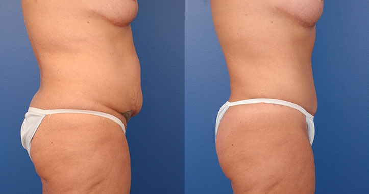 Tummy Tuck Right lateral