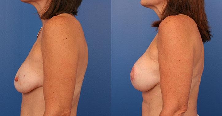 Atlanta Latissimus Dorsi Breast Reconstruction