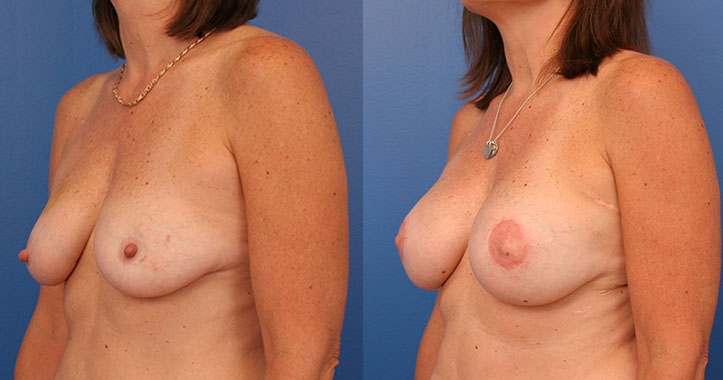 Atlanta Latissimus Dorsi Breast Reconstruction