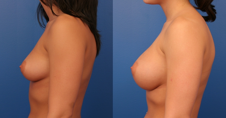 Marietta Breast Augmentation