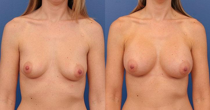Breast Implants AP