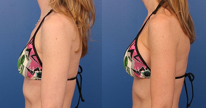 Breast Implants Lt Lateral Bikini