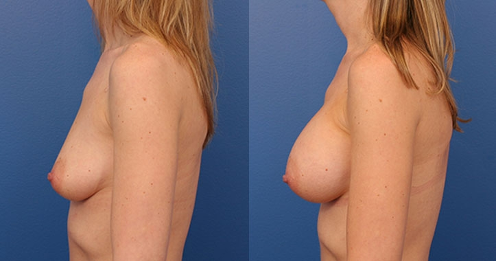 Breast Implants Lt Lateral