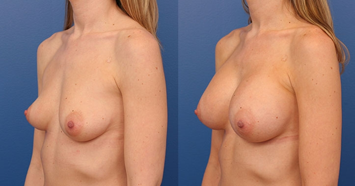 Breast Implants Lt Quarter