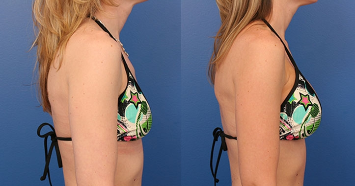 Breast Implants Rt Lateral Bikini