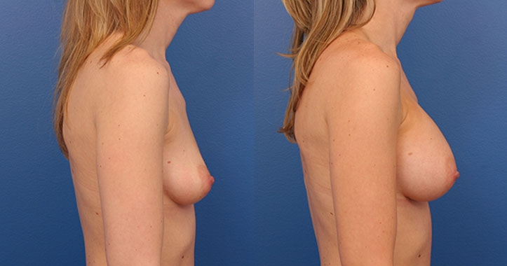Breast Implants Rt Lateral