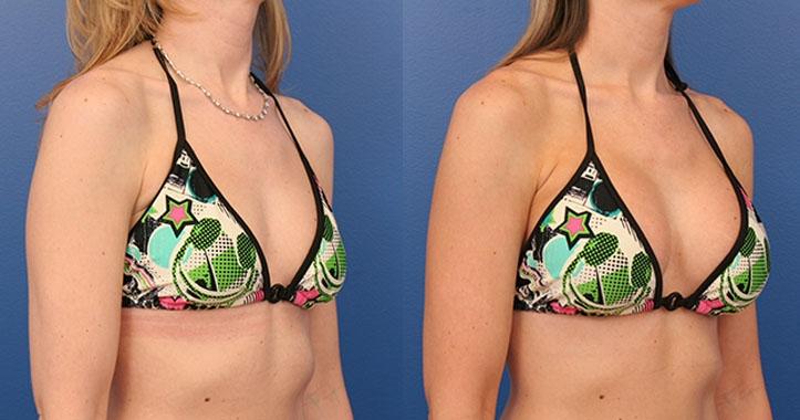 Breast Implants Rt Quarter Bikini