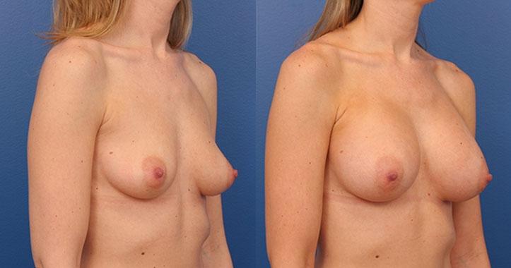 Breast Implants Rt Quarter