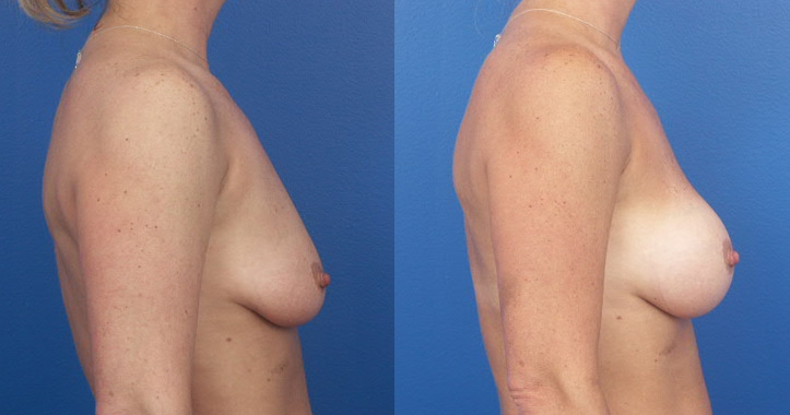 Lactating after breast augmentation