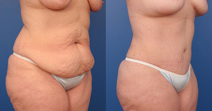 Atlanta Tummy Tuck Rt Quarter