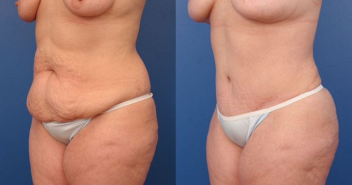 Atlanta Tummy Tuck Lt Quarter
