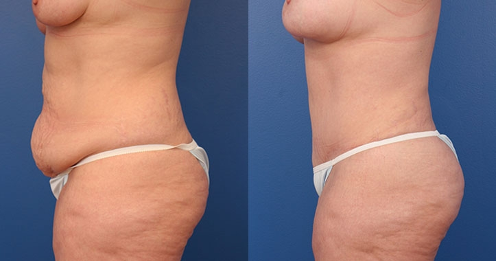 Atlanta Tummy Tuck Lt Lateral