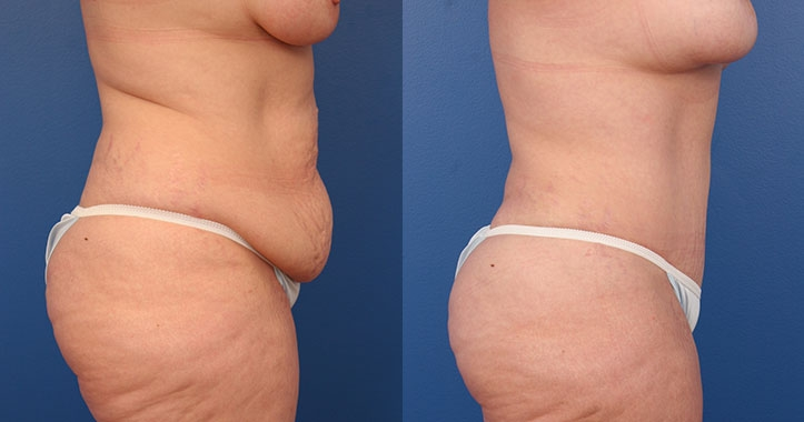 Atlanta Tummy Tuck Rt Lateral