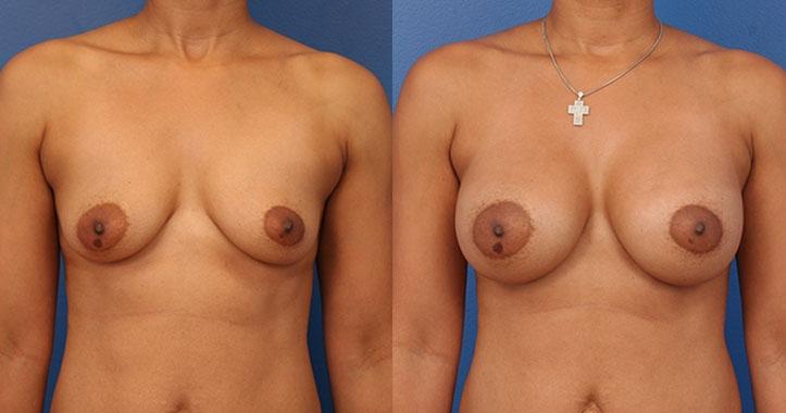 Marietta Breast Implants AP