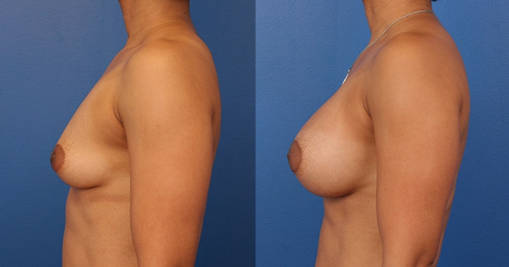 Marietta Breast Implants Lt Lateral