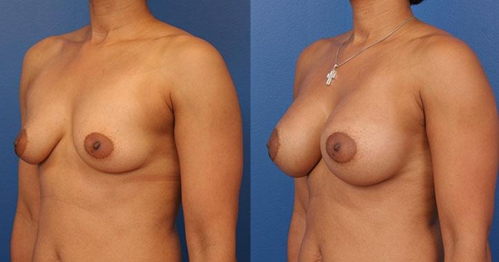 Marietta Breast Implants Lt Quarter