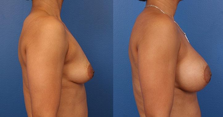 Marietta Breast Implants Rt Lateral