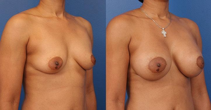 Marietta Breast Implants Rt Quarter