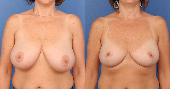 Atlanta Breast Reduction AP