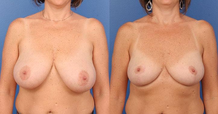 Atlanta Breast Reduction AP
