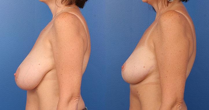 Atlanta Breast Reduction Lt Lateral