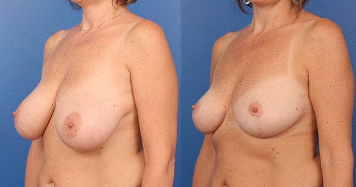 Atlanta Breast Reduction Lt Quarter