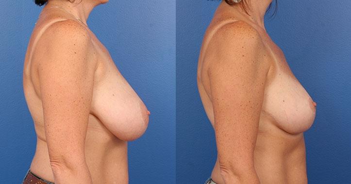 Atlanta Breast Reduction Rt Lateral