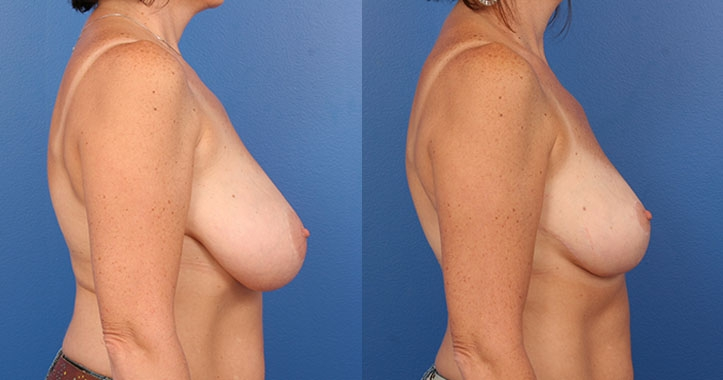 Atlanta Breast Reduction Rt Lateral