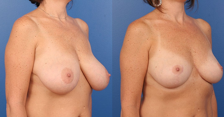 Atlanta Breast Reduction Rt Quarter