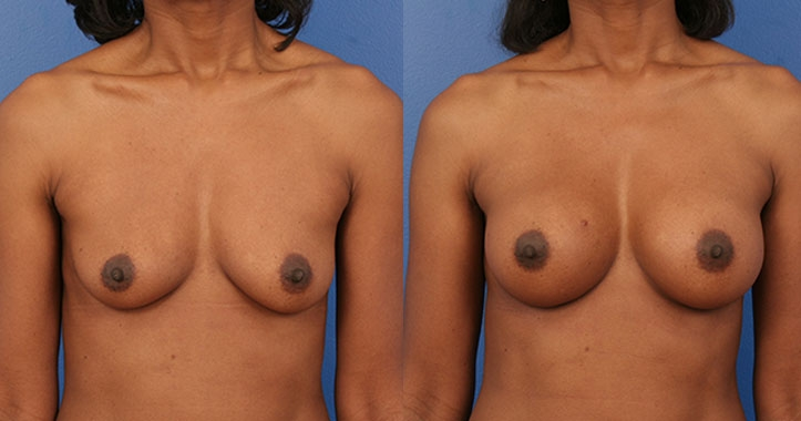 Atlanta Breast Implants AP