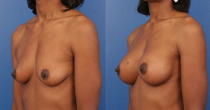 Atlanta Breast Implants Lt Quarter