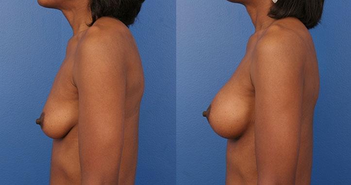 Atlanta Breast Implants Lt Lat