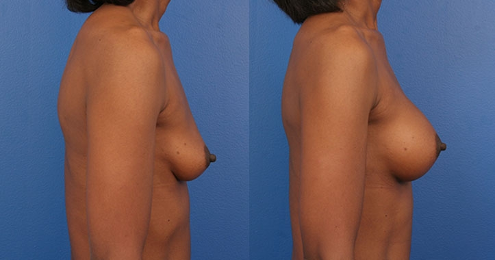 Atlanta Breast Implants Rt Lat