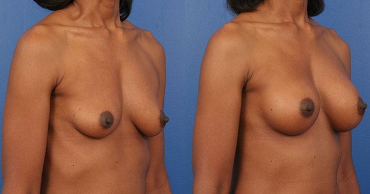 Atlanta Breast Implants Rt Quarter