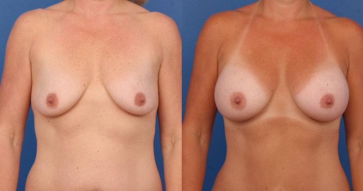 Marietta Breast Augmentation AP
