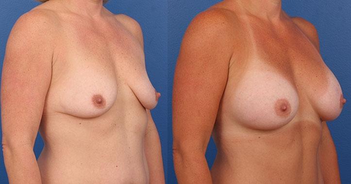 Marietta Breast Augmentation Rt Quarter