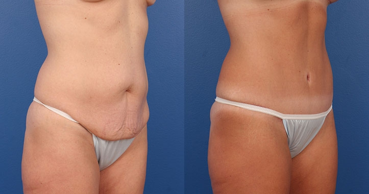 Marietta Tummy Tuck Rt Quarter