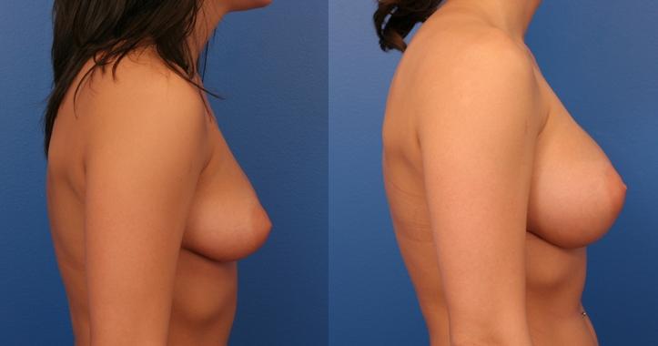 Marietta Cosmetic Breast Surgery