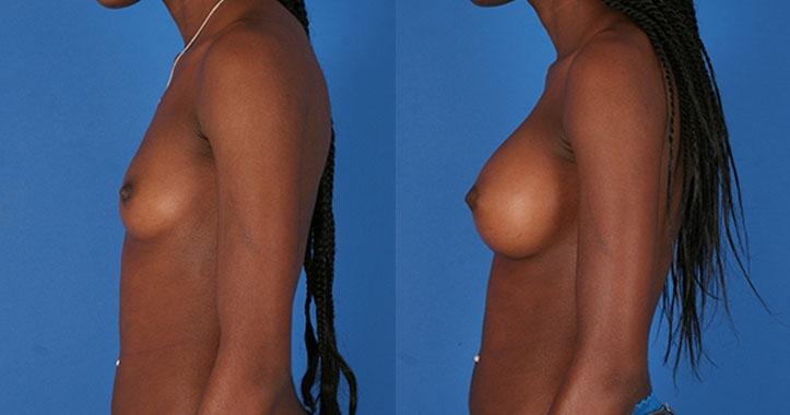 Atlanta Breast Implants