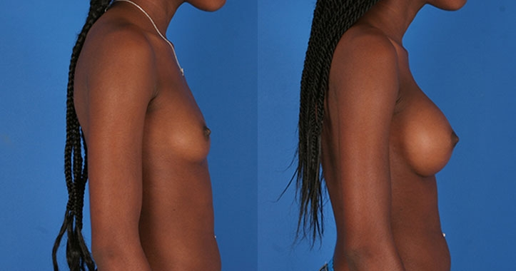 Marietta Breast Implants