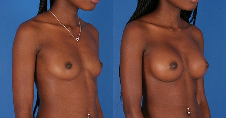 Kennesaw Breast Implants