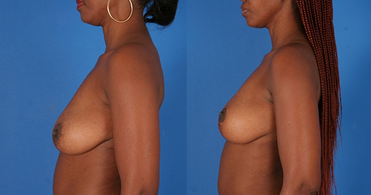 Breast Lift Atlanta