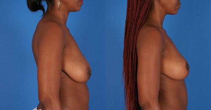 Breast Lift Marietta