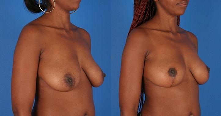 Breast Lift Kenensaw